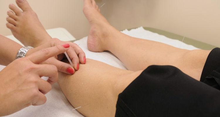 Cuánto cuesta una sesión de acupuntura