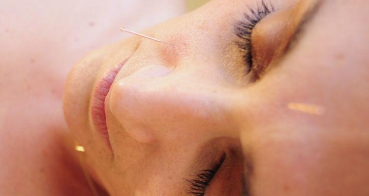 Precio sesión de acupuntura